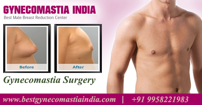 Gynecomastia-Surgery-in-Delhi-India